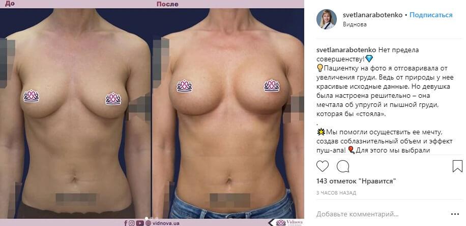фото результатов (до и после)