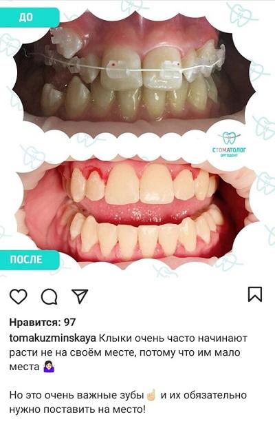 Фото результатов до и после в Инстаграм